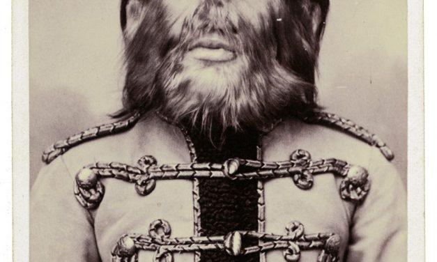 Федор Адрианович Евтищев – уроженец Санкт-Петербурга страдавший, как и его отец, редким …